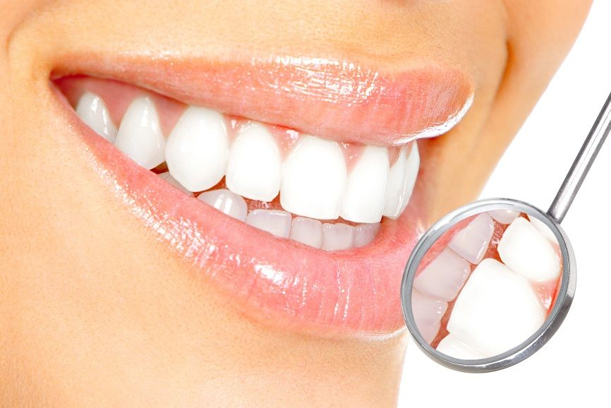 Smile Brightly with Teeth Whitening
