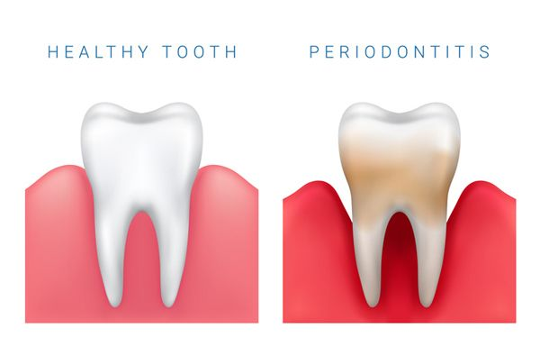 How do I prevent, and treat Periodontal Disease?