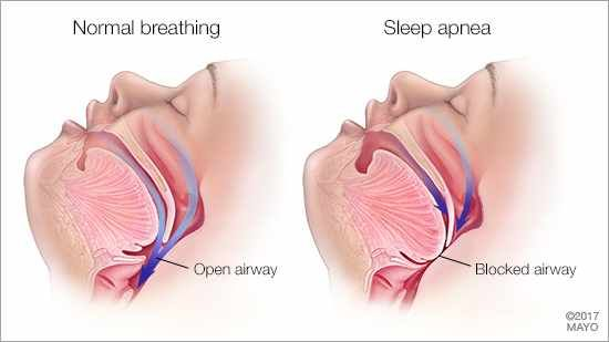 What are the side affects of Sleep Apnea?