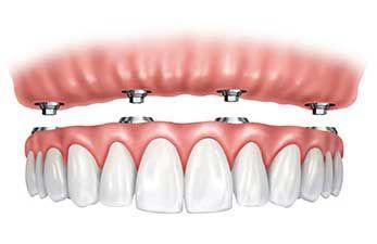 Why should I choose All-on-4 Dental Implants?