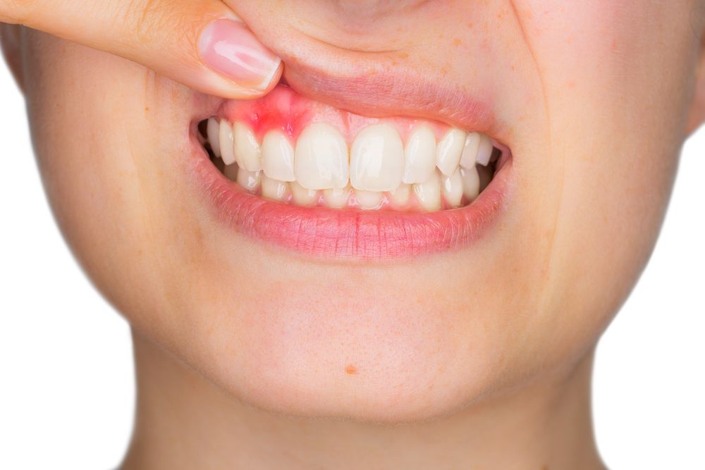 Everything You Should Know About Gum Disease
