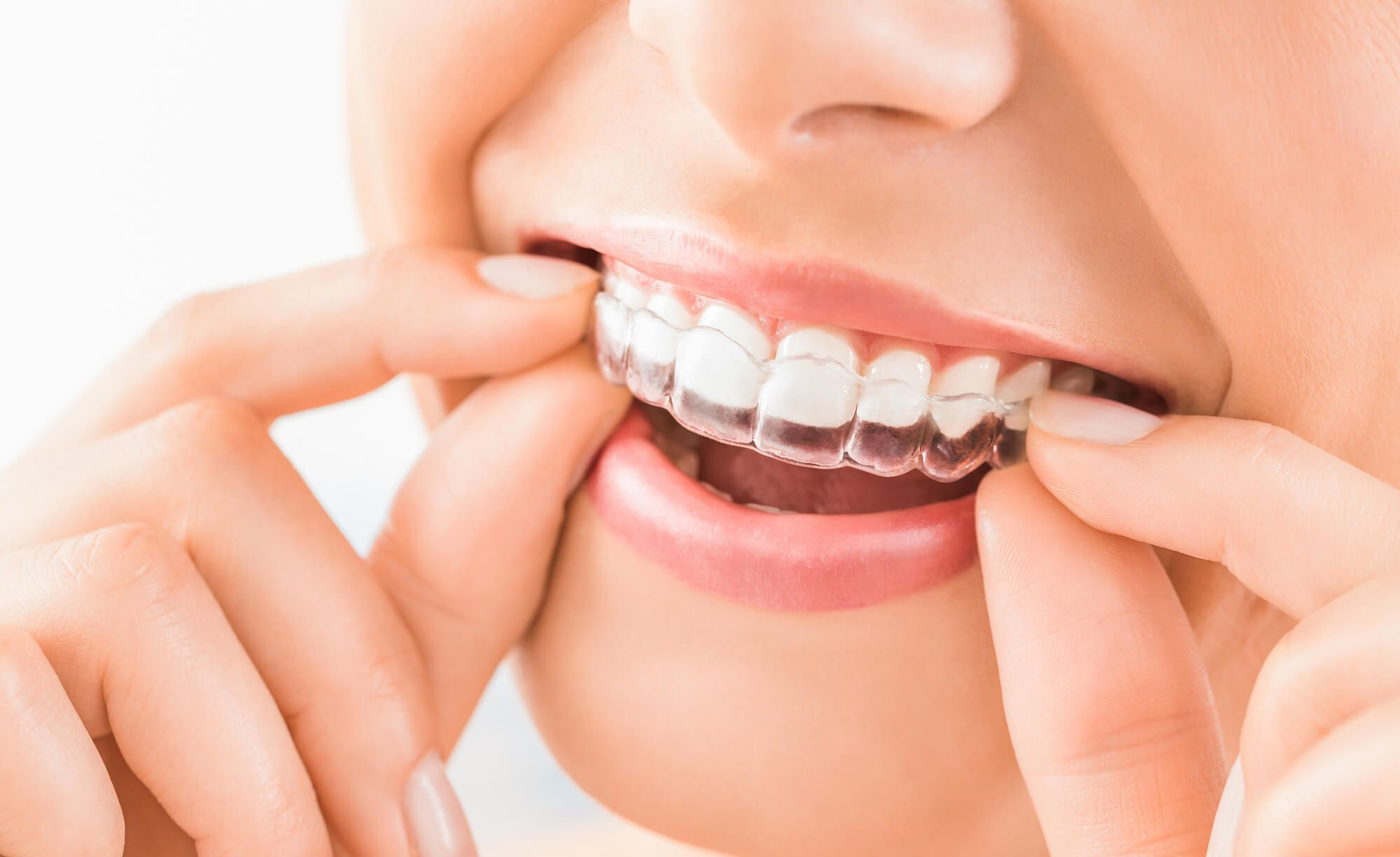 The Benefits of Getting Invisalign