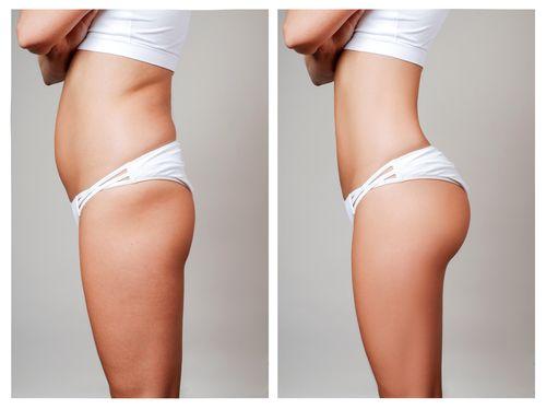 Liposuction | Body Contouring Plastic Surgeon Lafayette, LA