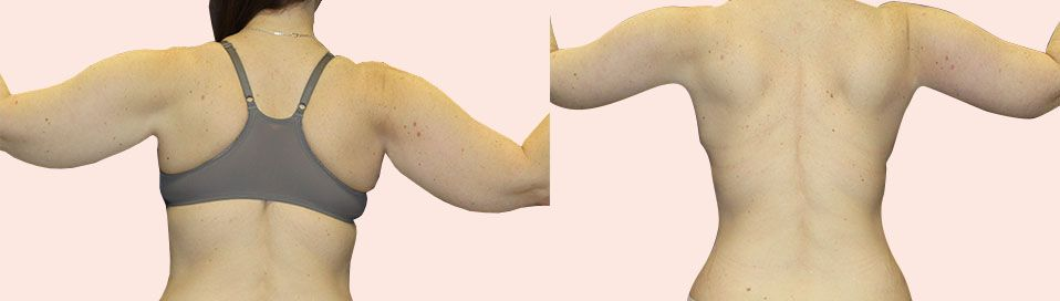 Before and after breast procedure