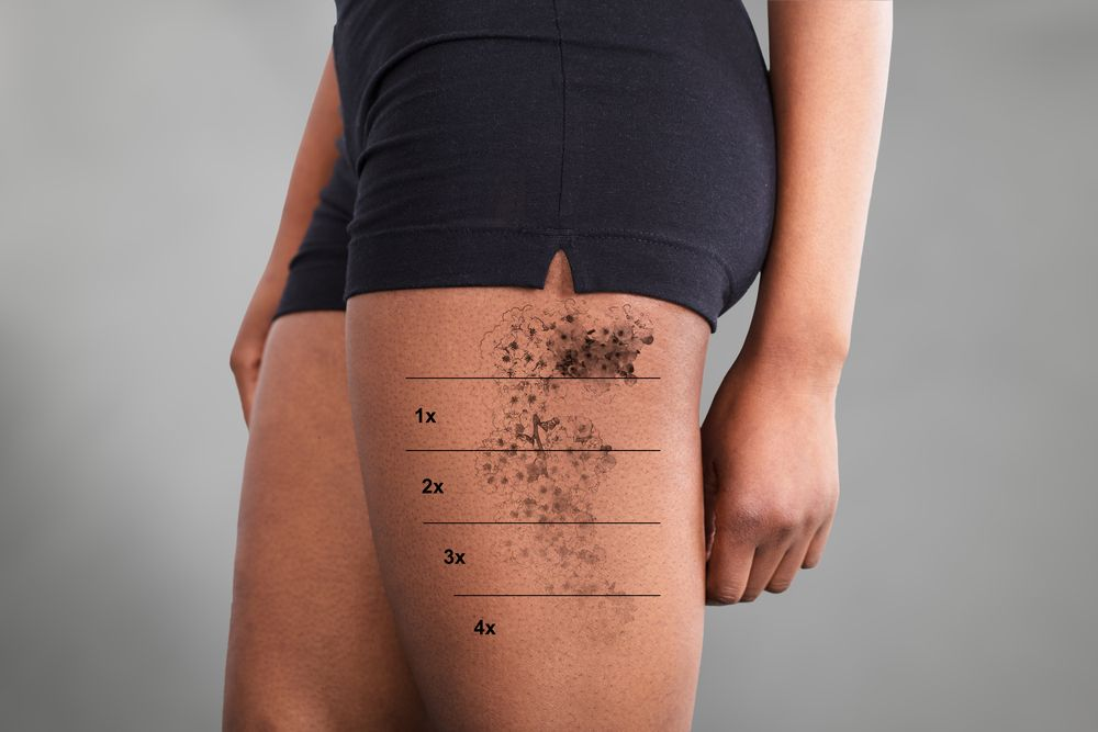 Frequently Asked Tattoo Removal Questions