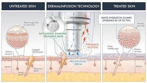 silkpeel dermal infusion