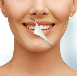 Salt Lake City Teeth Whitening In Office Vs At Home