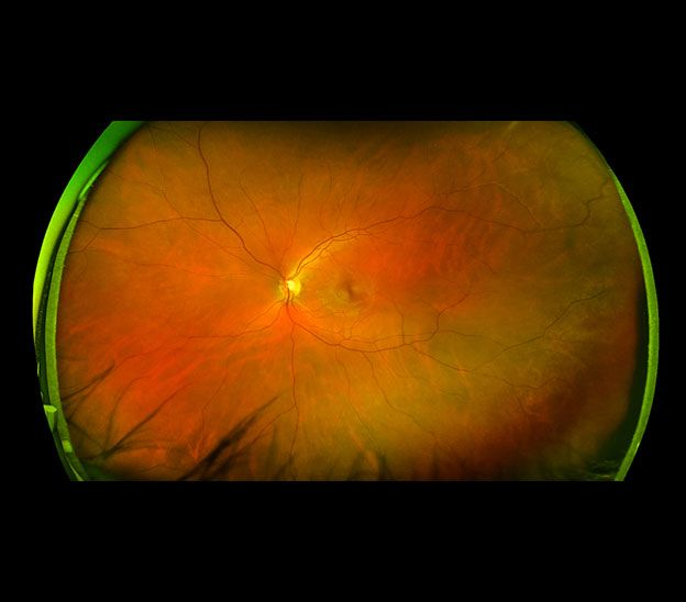 Ultra Wide Retinal Imaging