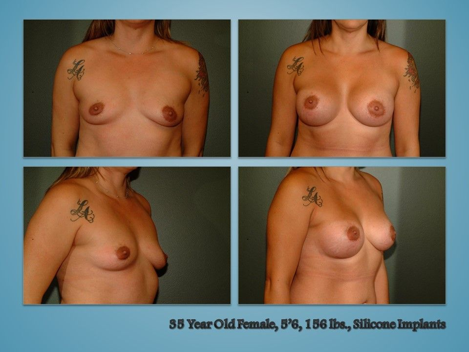 Before and after procedure in the Body
