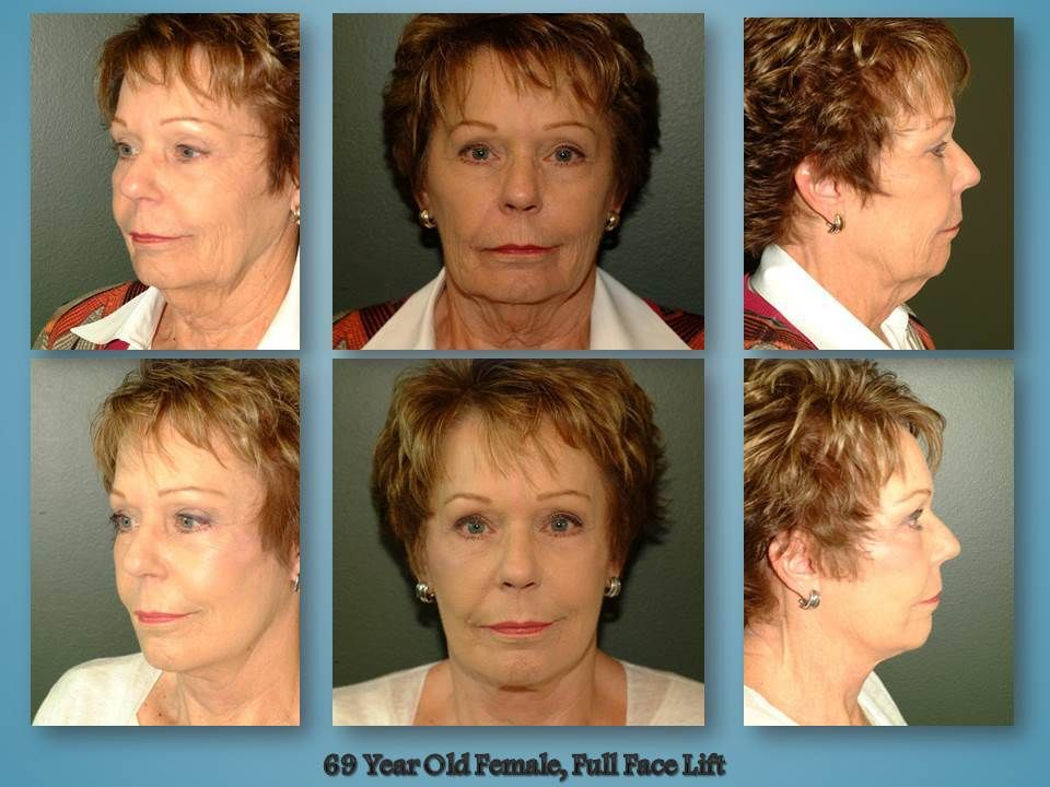Before and after procedure in the face