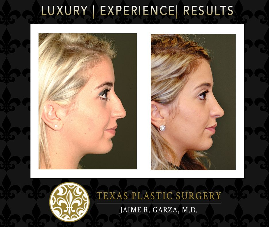Before and After Rhinoplasty, Otoplasty, Blepahroplasty, Chin implant
