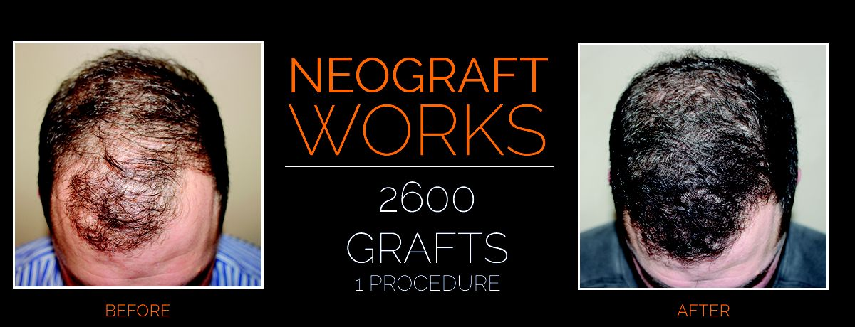 hair restoration neograft