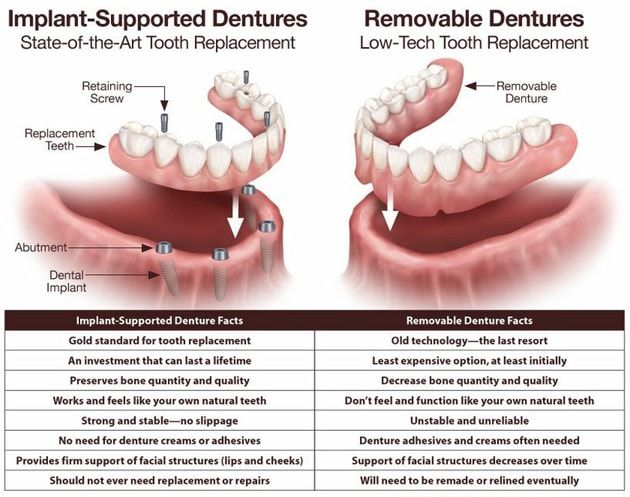 Teeth in a Day in Worcester MA   Levenson Smile