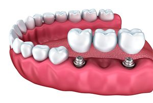 Teeth in a Day with Dental Implants