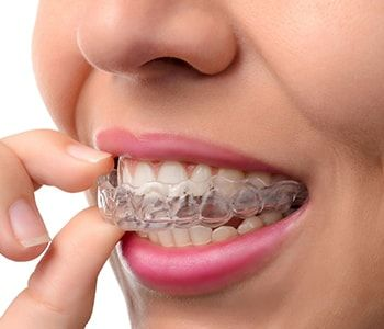 Worcester MA Invisalign Dentist
