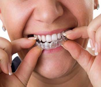 Invisalign invisible aligners provide discreet treatment in Worcester MA