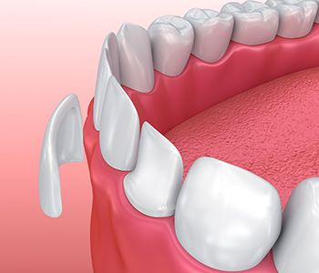 Porcelain veneers are a dental bonding solution and teeth whitening alternative in Worcester, MA