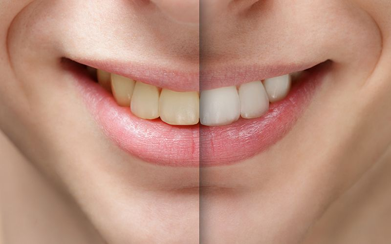 Whitening: 5 Things to Know Before Getting a Brighter Smile