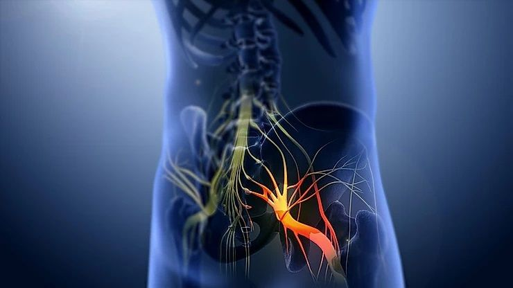 Sciatica is driving me crazy! Can chiropractic help?