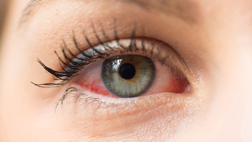 Corneal Infections