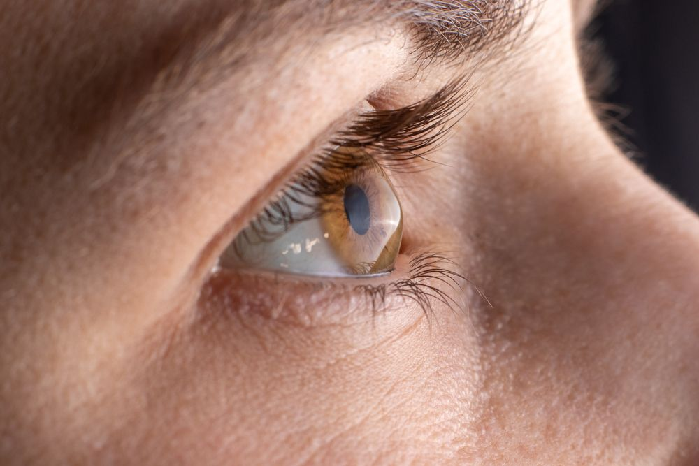 Is Dry Eye Syndrome Permanent?