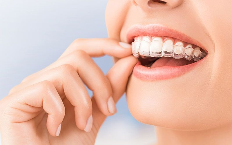clear braces compared to traditional braces