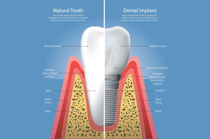 dental implants graph