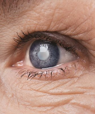 Premium Cataract Surgery