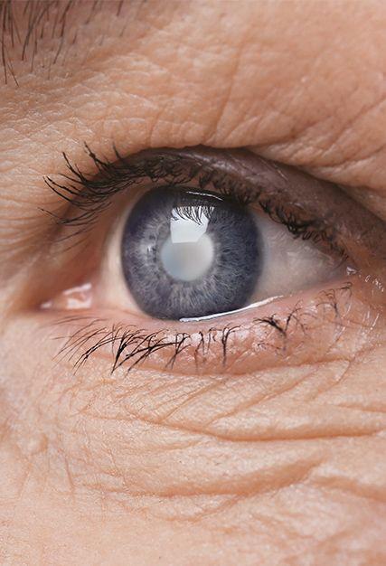 Ocular Conditions