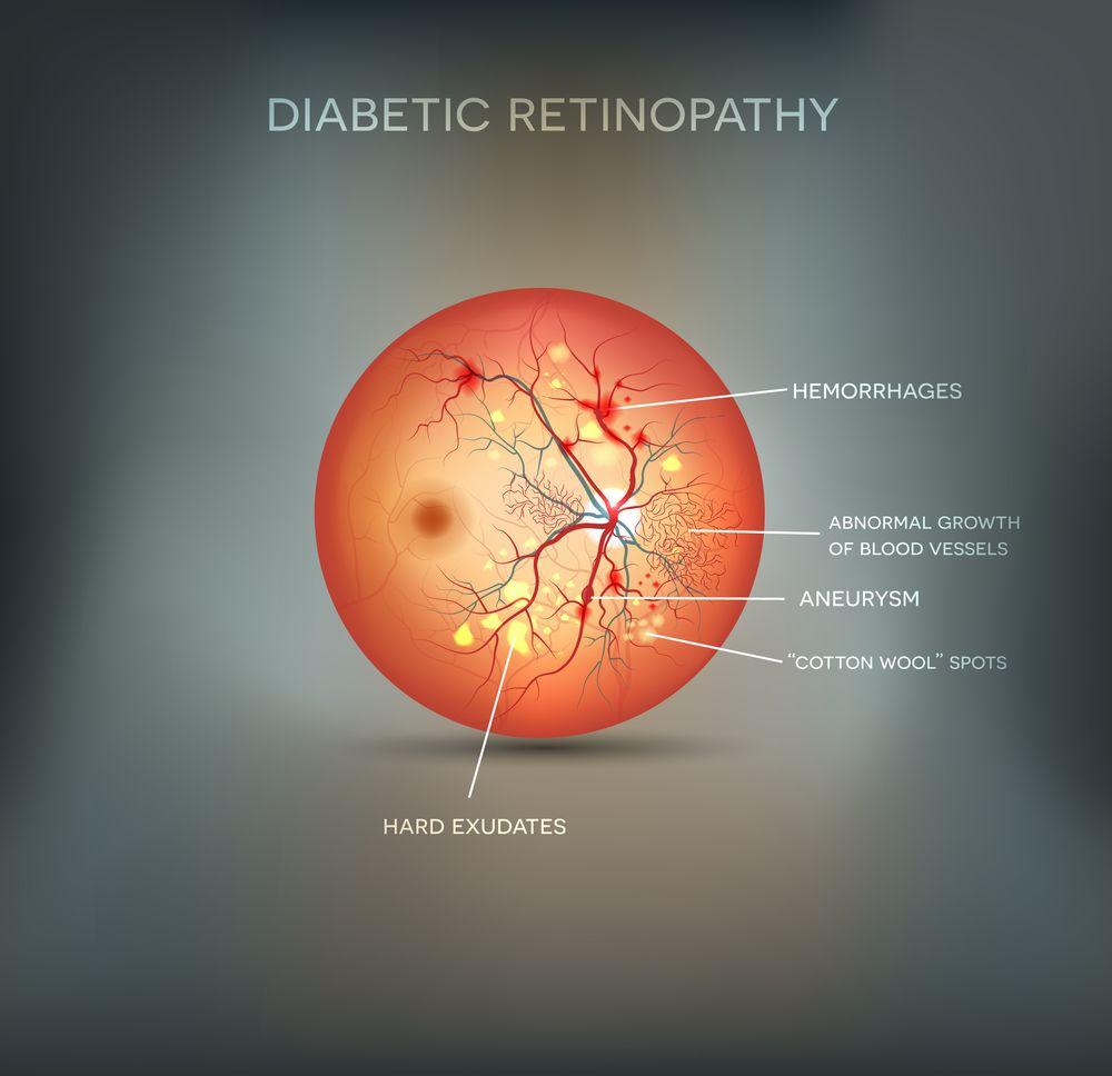 Diabetic Eye Screening