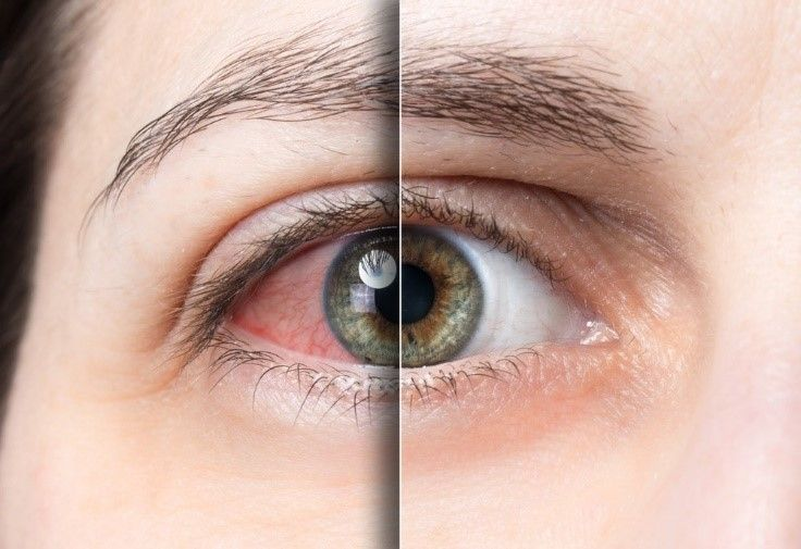 Red Eye vs Clear Eye