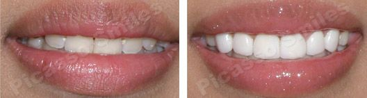 before and after veneers 1