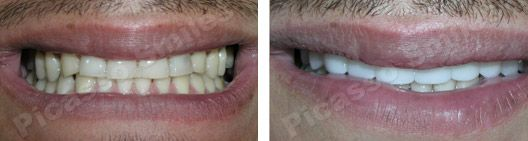 before and after veneers 11