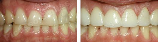 before and after veneers 12