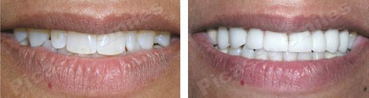 before and after veneers 3