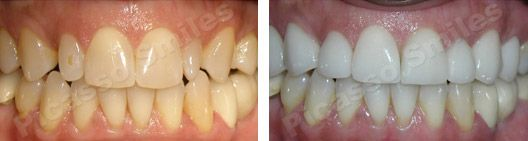 before and after veneers 4