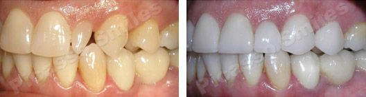before and after veneers 6