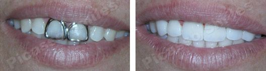 before and after veneers 7