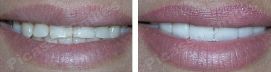 before and after veneers 9