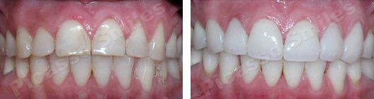 before and after veneers 8