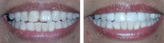 before and after veneers 10