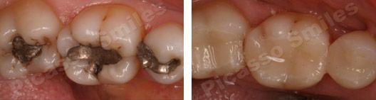 before and after white fillings