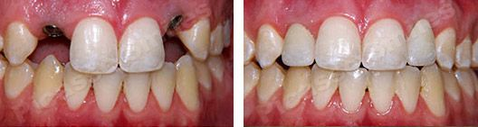 before and after dental implants