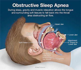 sleep apnea infograph