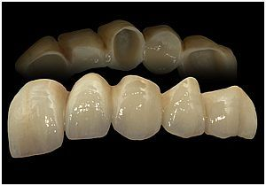 PORCELAIN FUSED TO ZIRCONIA
