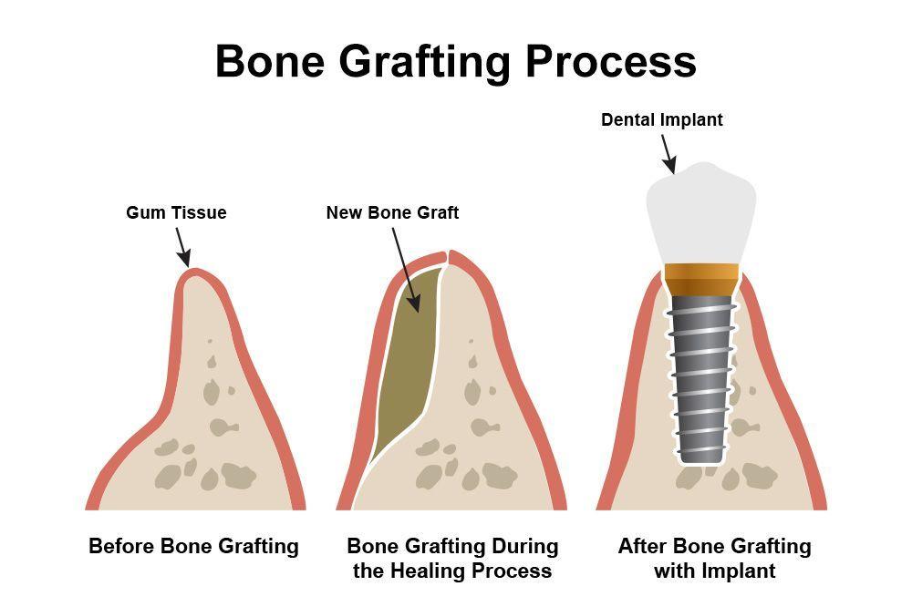 bonegrafting
