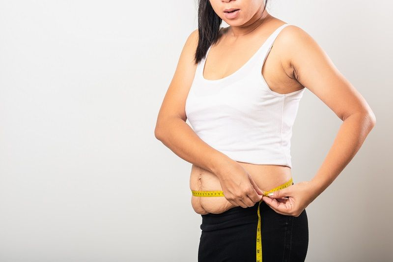 Can I Have Lap Band Weight Loss Surgery After Gastric Bypass?