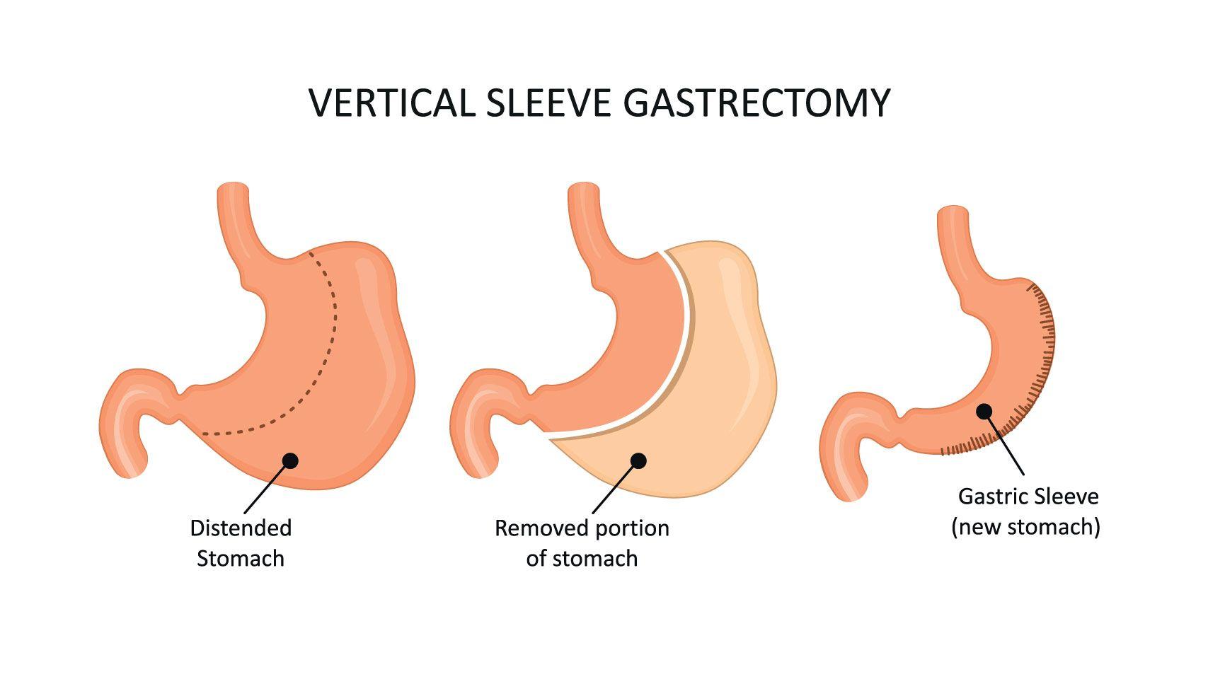 vertical sleeve gastrectomy