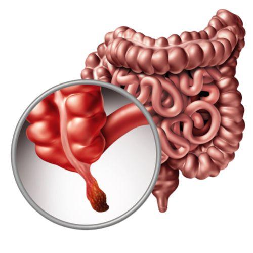 Appendix removal