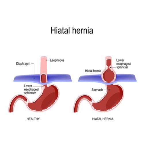 Hiatal Hernia repair